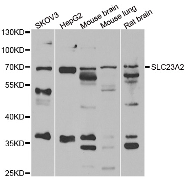Western blot analysis of extracts of various cell lines, using SLC23A2 antibody.
