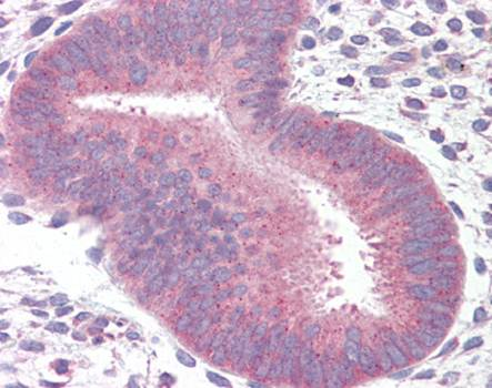 Immunohistochemical staining of paraffin embedded human uterus tissue using 14-3-3 antibody (primary antibody at 1:200)
