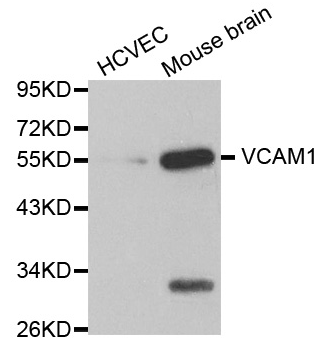 Western blot analysis of extracts of various cell lines, using VCAM1 antibody.