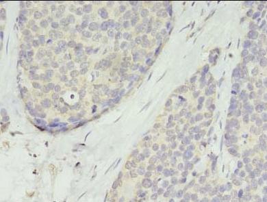 Immunohistochemistry staining of human gastric cancer using TMEM45A antibody