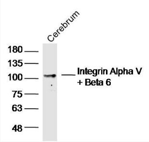 Western blot analysis of Rat Cerebrum Lysate using Integrin Alpha V/Beta 6 antibody.