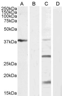 Western blot analysis of  Mouse Liver lysate (Lane 1) + Peptide (Lane 2), Human Kidney lysate (Lane 3) + Peptide (Lane 4) using VEGFA antibody.