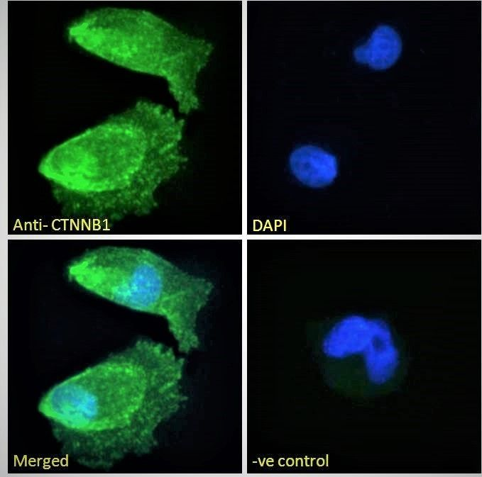 Immunofluorescence analysis of U251 cells of CNNB1 antibody.
