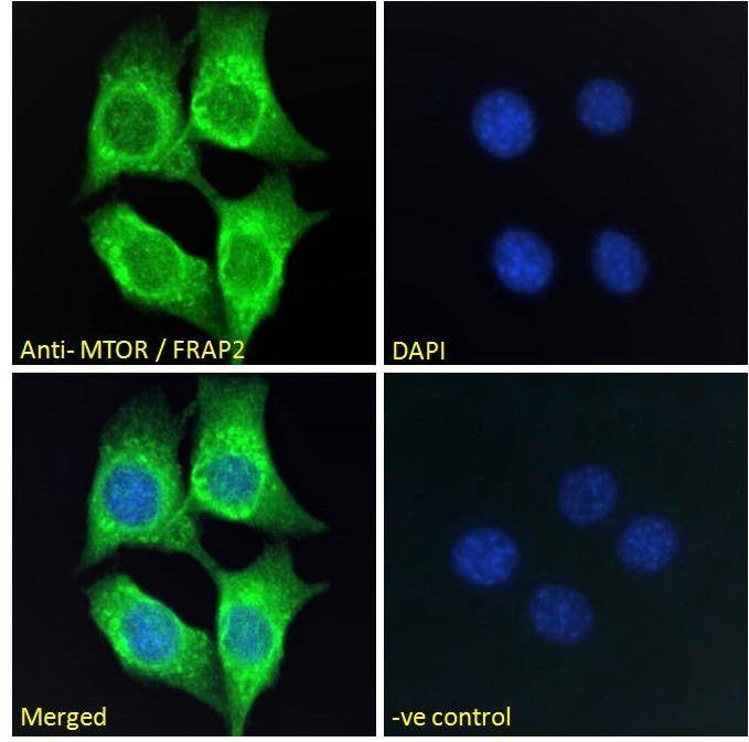 Immunofluorescence analysis of NIH3T3 cells  of MTOR antibody.