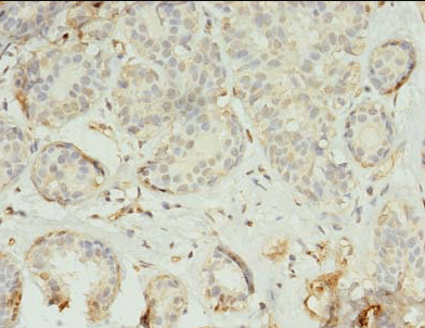 Immunohistochemistry staining of human breast cancer using TMEM45A antibody