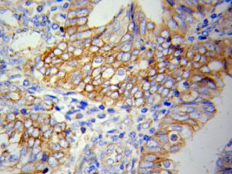 Immunohistochemistry analysis of paraffin-embedded H-spleen using VCAM1 Antibody.