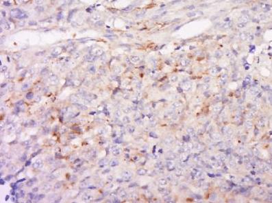 Immunohistochemical analysis of human colon cancer using Angiopoietin 2 antibody
