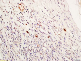 Immunohistochemical staining of human laryngeal tissue using NR1D1 antibody.