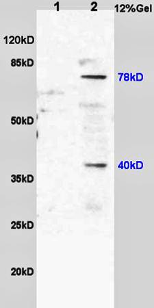 Western blot analysis of rat brain lysates(Lane1),mouse intestine lysates(Lane2) using 5-Lipoxygenase antibody