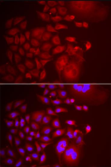 Immunofluorescence analysis of U2OS cell using TRAPPC10 antibody.