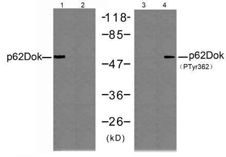 Western blot analysis of JK cells using p62Dok (Ab-362) antibody.