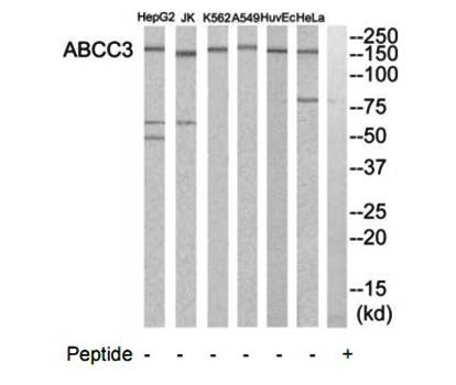 Western blot analysis of extracts from HeLa cells, A549 cells, Jurkat cells, HuvEc cells, K562 cells and HepG2 cells using ABCC3 antibody