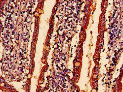 Immunohistochemical staining of Human small intestine tissue using ABHD10 antibody