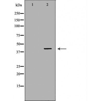 Western blot analysis of K562 cell lines using ABO antibody