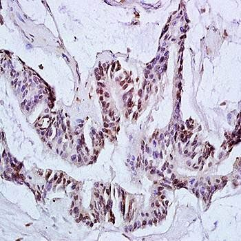 Immunohistochemical analysis of formalin-fixed and paraffin embedded human colon carcinoma tissue (dilution at:1:200) using Ack1 antibody