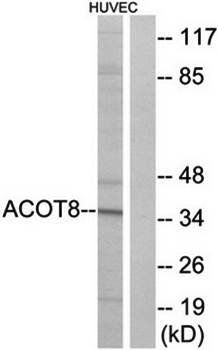 Western blot analysis of extracts from HUVEC cells using ACOT8 antibody