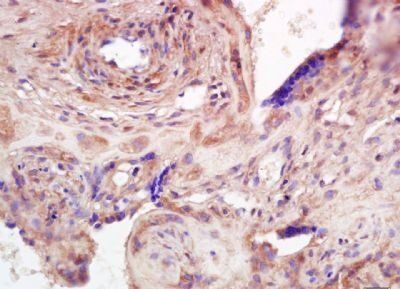 Immunohistochemical analysis of formalin-fixed paraffin embedded human placenta tissue using ADAMTS7 antibody (dilution at 1:200)