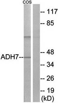Western blot analysis of extracts from COS cells using ADH7 antibody