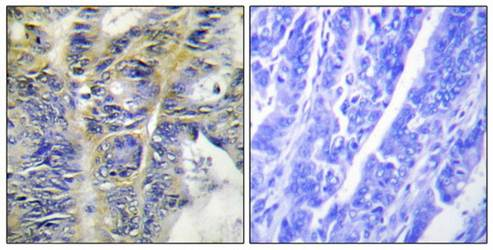 Immunohistochemical analysis of formalin-fixed and paraffin-embedded human colon carcinoma tissue using ADRA1A antibody