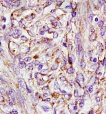 Immunohistochemical analysis of formalin fixed and paraffin embedded human cervical carcinoma using AFP (A4) antibody