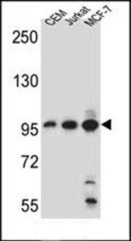 Western blot analysis of CEM, Jurkat, MCF-7 cell line lysates (35ug/lane)using AFTPH antibody (primary antibody dilution at: 1:1000)