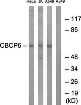 Western blot analysis of extracts from HeLa cells, Jurkat cells and A549 cells using AGBL4 antibody