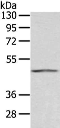Western blot aanalysis of Humna placenta tissueusing AGPAT9 antibody
