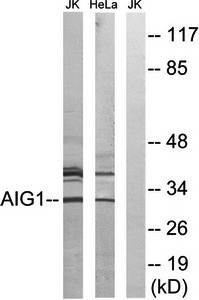 Western blot analysis of extracts from Jurkat cells and HeLa cells using AIG1 antibody
