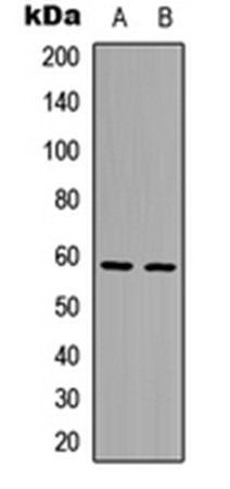 Western blot analysis of HepG2 (Lane1), HeLa (Lane2) whole cell using AIOLOS antibody