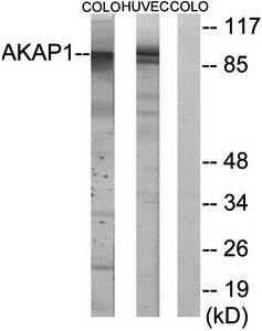 Western blot analysis of extracts from HUVEC cells and COLO cells using AKAP1 antibody