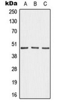 Western blot analysis of MDAMB231 (Lane 1), NIH3T3 (Lane 2), H9C2 (Lane 3) whole cell lysates using AKAP5 antibody