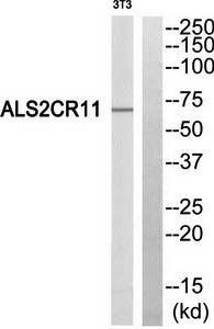 Western blot analysis of extracts from NIH/3T3 cells using ALS2CR11 antibody