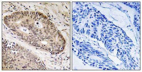 Immunohistochemical analysis of formalin-fixed and paraffin-embedded human lung carcinoma tissue using ALS2CR8 antibody