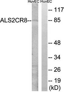 Western blot analysis of extracts from HuvEc cells using ALS2CR8 antibody