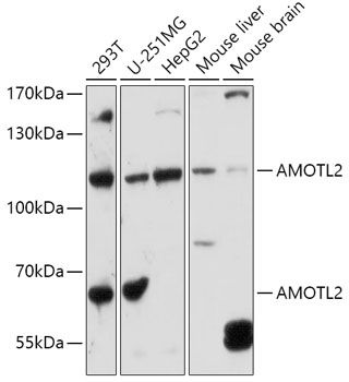 Western blot analysis of extracts of various cell lines lysates using AMOTL2 antibody