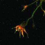 Immunofluorescense analysis of Amyloid Precursor peptide