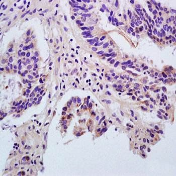 Immunohistochemical analysis of formalin-fixed and paraffin embedded human rectal carcinoma (dilution at:1:200) using Angiopoietin 1 antibody
