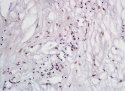 Immunohistochemical analysis of formalin-fixed paraffin embedded human cervical cancer tissue using Angiotensin I antibody (dilution at 1:200)