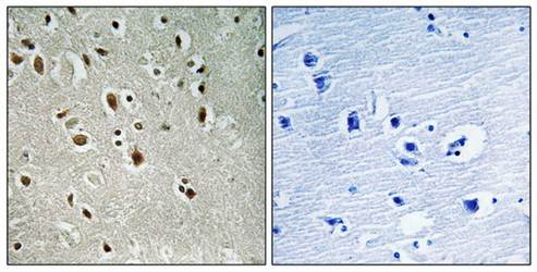 Immunohistochemical analysis of formalin-fixed and paraffin-embedded human brain tissue using ANKRD20A3 antibody