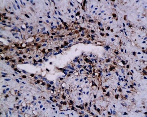 IHC-P of human cervical epithelial tumor tissue (Annexin A1 antibody at 1:250)