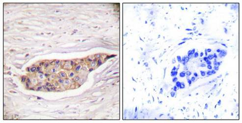 Immunohistochemical analysis of formalin-fixed and paraffin-embedded human breast carcinoma tissue using Annexin A6 antibody