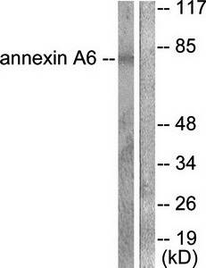 Western blot analysis of extracts from 293 cells using Annexin A6 antibody