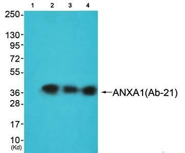 Western blot analysis of extracts from JK cells (Lane1), K562 cells (Lane2) and 293 cells (Lane3) using ANXA1 antibody