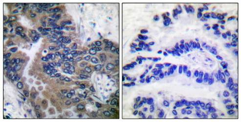 Immunohistochemical analysis of formalin-fixed and paraffin-embedded human lung carcinoma tissue using APAF-1-ALT antibody