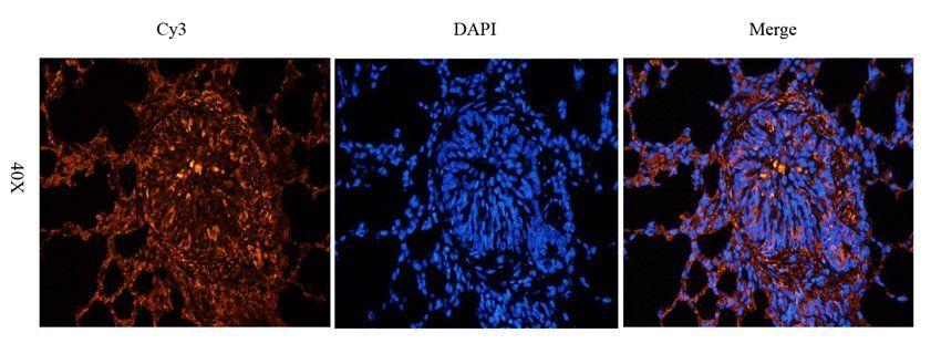 IF analysis of guinea pig lung tissue using Aquaporin 1 antibody (2.5 ug/ml)