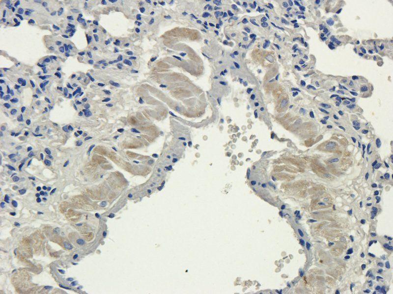 IHC-P image of rat lung tissue using anti-Aquaporin 4 (2.5 ug/ml)