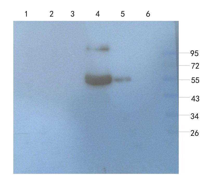 Western blot analysis of mouse brain (lane 1), mouse medulla (lane 2), rat muscle (lane 3), human breast cancer (lane 4), human thyroid tumour (lane 5), U251 cells (lane 6) using Aquaporin 4 antibody (1 ug/ml)