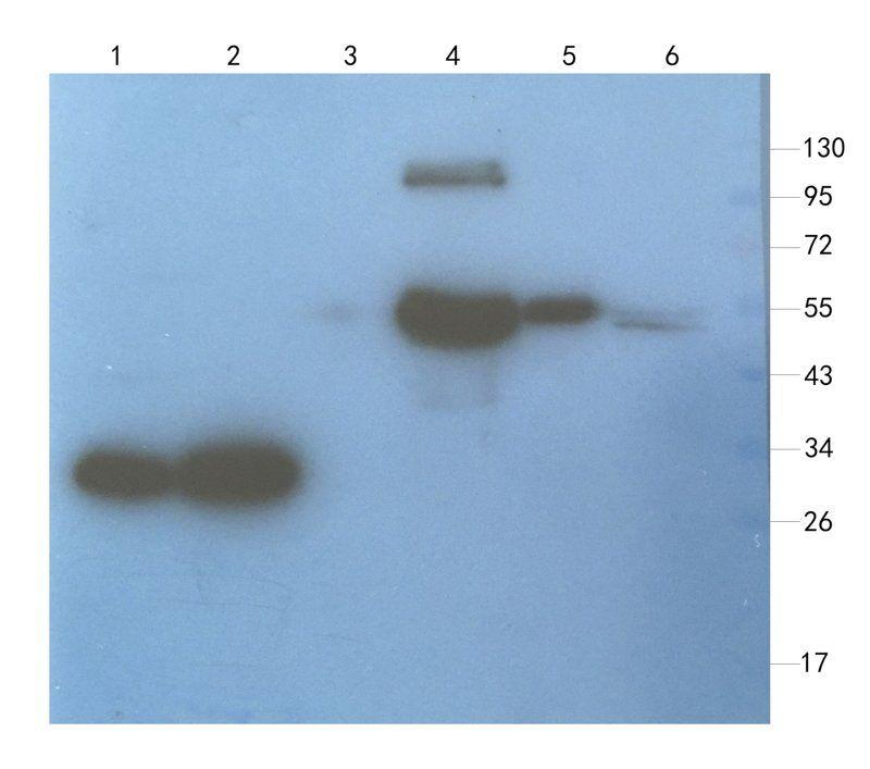 WB analysis of mouse brain (lane 1), mouse medulla (lane 2), rat muscle (lane 3), human breast cancer (lane 4), human thyroid tumour (lane 5), U251 cells (lane 6) using Aquaporin 4 antibody (1 ug/ml)