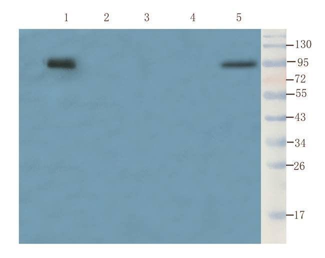 WB analysis of  rat liver (lane 1), rat bladder (lane 2), mouse lung (lane 3), rat spleen (lane 4), mouse testis (lane 5) using Aquaporin 9 antibody (1 ug/ml)