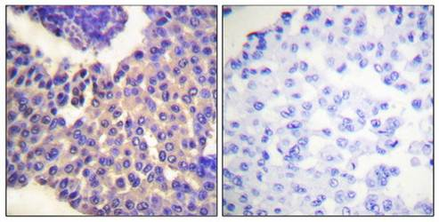 Immunohistochemistry analysis of formalin-fixed and paraffin-embedded human breast carcinoma tissue using Arrestin 1 (phospho-Ser412) antibody